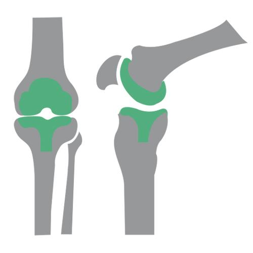 Joint Replacement & Orthopaedics